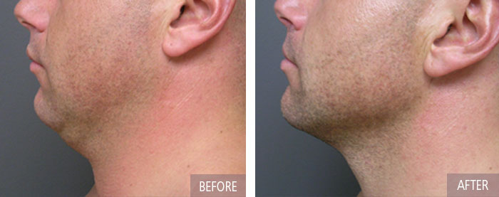 before-after-neck male