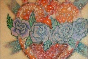 Laserless Tattoo