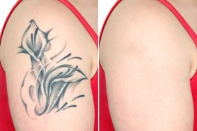 laser perfection, tattoo removal, laser tattoo removal