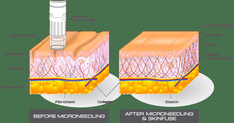 skin pen micro needling
