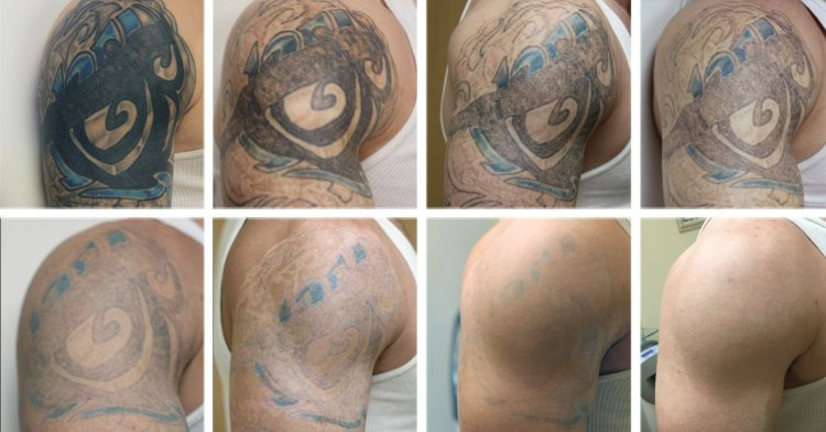 laser perfection,tattoo removal, laser tattoo removal