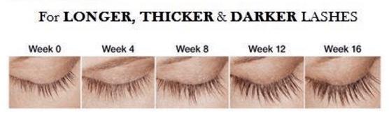 Laser Perfection Latisse longer thicker darker lashes
