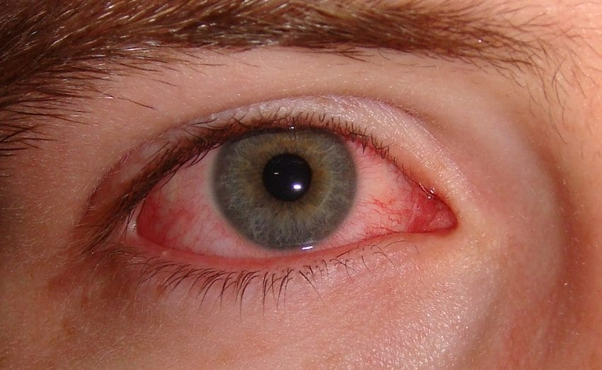 eye infection - Lady Has Itchy Red Eyes For 2 Years Prior To Physicians Inform Her She Has Hundreds Of Eyelash Mites