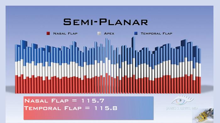 Semi-Planar