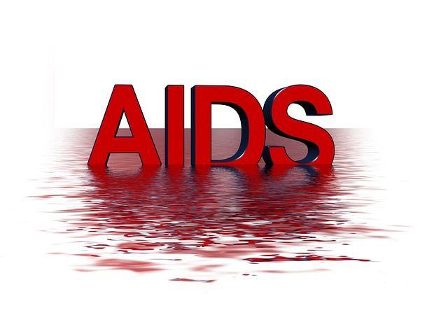 Efecto de la hipnosis relajante en pacientes infectados con HIV