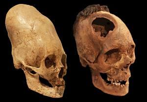 Crani provenienti dal Perù (Paracas). a sinistra caratteristico rimodellamento cranico e a destra perforazione chirurgica.