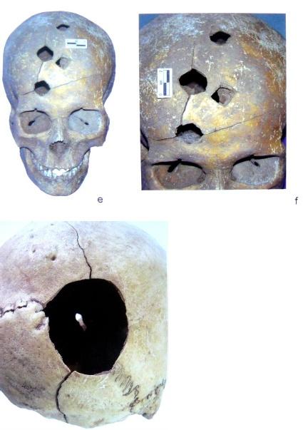"""In alto il cranio della donna della tomba 22, di circa 20 anni, con i 4 fori provocati da un """"piccone da guerra"""", un'arma detta anche """"becco di corvo""""; sotto il cranio dell'uomo di circa 50-60 anni dalla tomba 24 con il foro provocato da una mazza (Cugunov & Parzinger 2010)."""