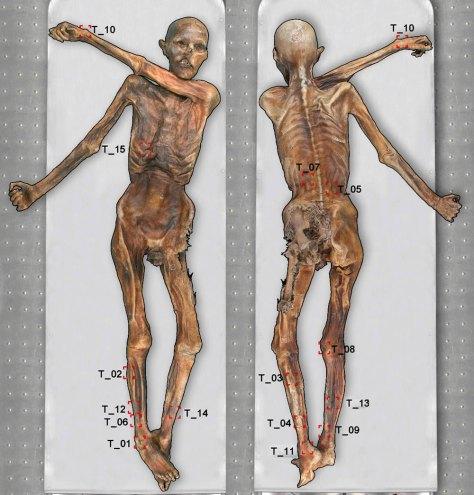 Posizione dei tatuaggi sulla mummia (foto: www.iceman.it)