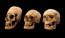 Teschi portati alla luce da sepolture di 1.400 anni fa nel sud della Germania possono mostrare segni di modificazione cranio intensiva o moderata, a sinistra e al centro, che i ricercatori ritengono sia una pratica culturale vista nelle tribù da est. (Foto: COLLEZIONE DI ANTROPOLOGIA E PALEOANATOMIA MONACO, GERMANIA)