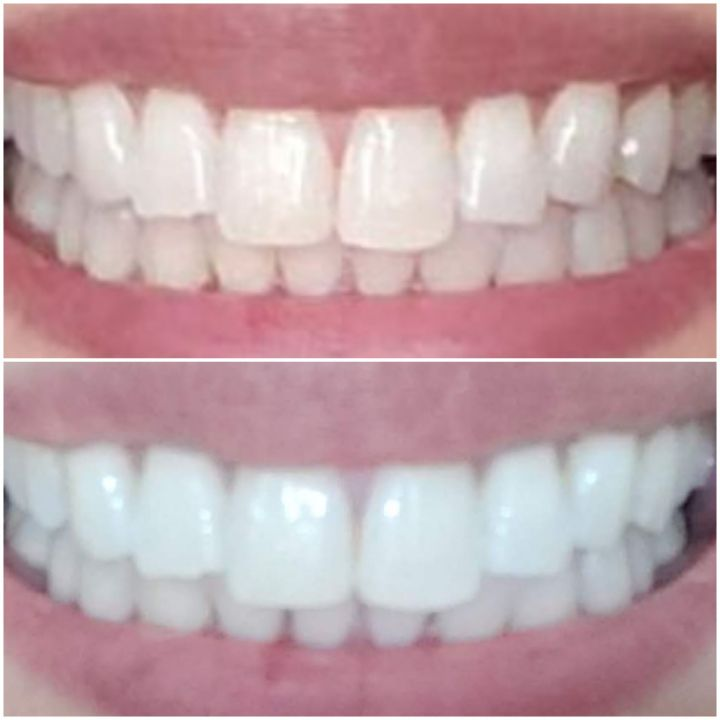 Smile Brilliant Before & After - late by lattes