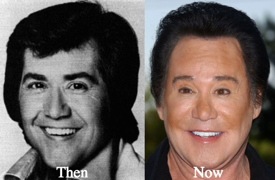 Image result for wayne newton plastic surgery disaster images