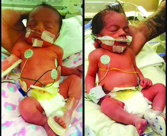 Brystol Skye y Brynlee Rae fueron las primeras bebés de la Costa Central./ Brystol Skye y Brynlee Rae were the first babies in the Central Coast./KEYT