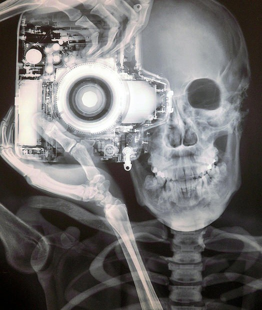 X-ray photographer and camera by Nick Veasey