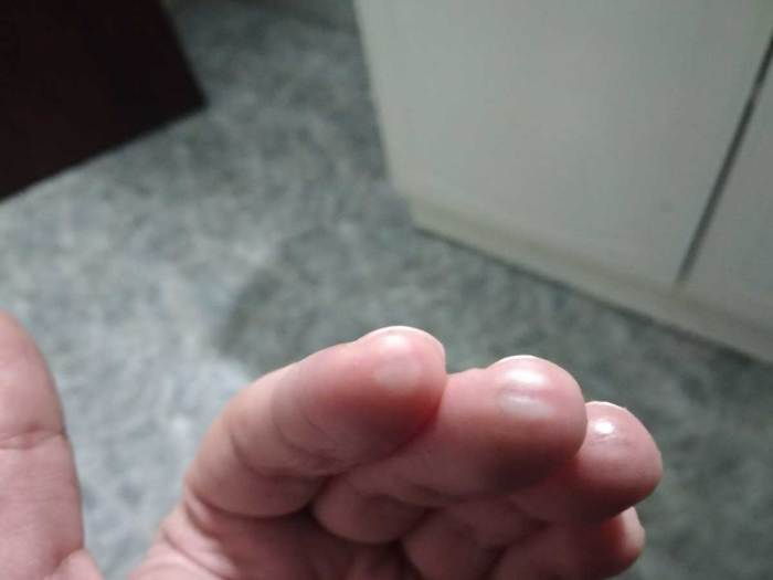 heridas de guerra aprendiendo guitarra