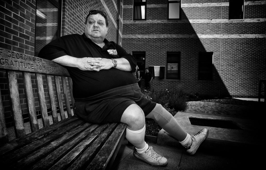 Graham Facey had his lower leg amputated because of gangrenous g