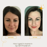 Before and After Anti-Aging Skincare Routine. How I aged in reverse in my 30s using a trifecta of anti-aging skincare products in combination with botox and dysport. Learn about vitamin C serum for anti-aging, retinol vs retinoid, and why sunscreen is the best anti-wrinkle cream there is!