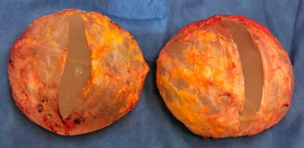 two orange-colored breast implants outside the body