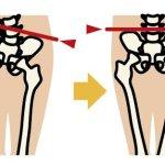 産後骨盤ケアと通常骨盤ケアの違い