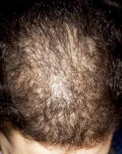 Grado de alopecia avanzado en escala de Ludwig