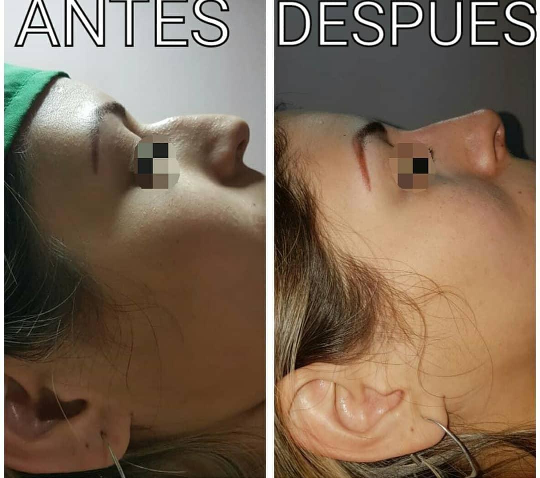 nuevas tendencias de armonizacion facial sin bisturi el dr simon loaiza aclara dudas laverdaddemonagas.com aante1