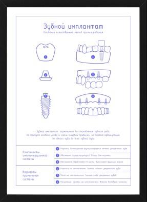Плакат Зубной имплантат лайт в темной рамке