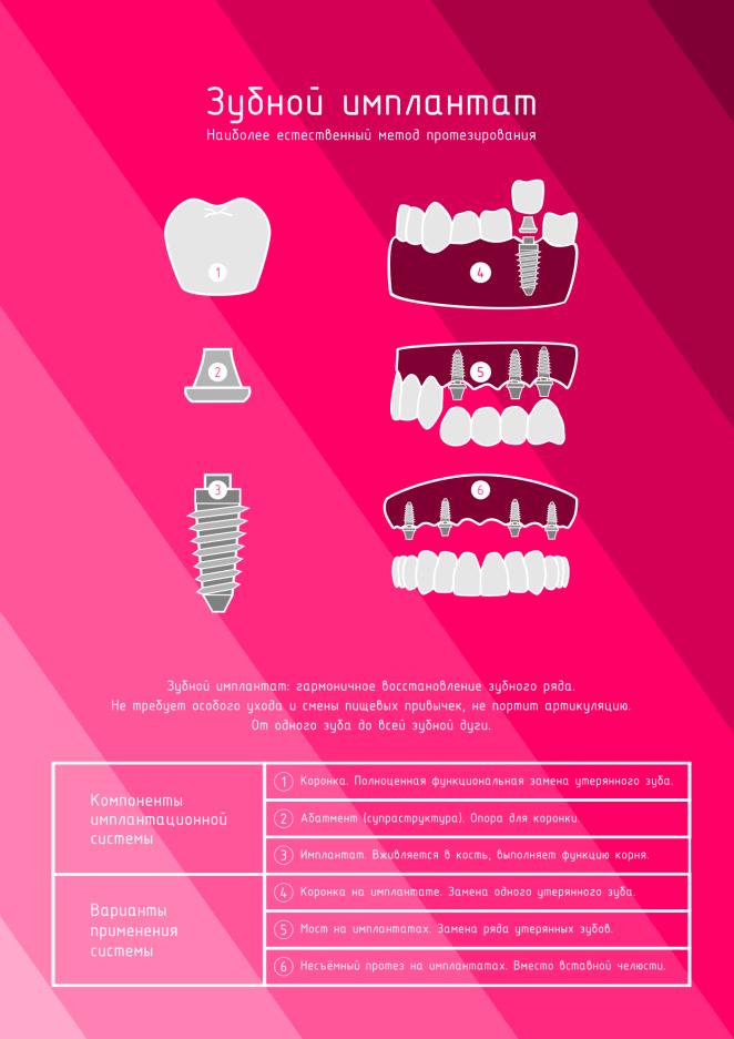 Плакат для стоматологии Зубной имплантат бордо