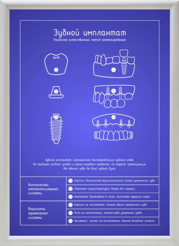 Зубной имплантат блюпринт в светлой рамке