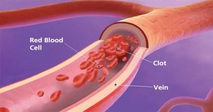 Xarelto Blood Clot