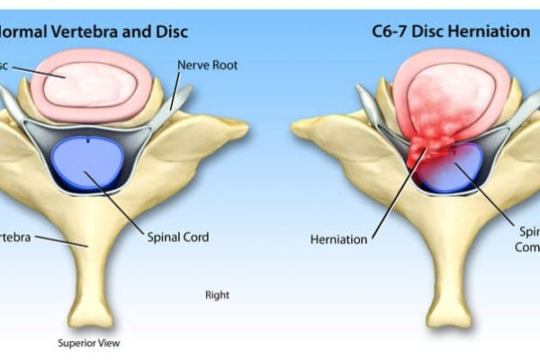 Personal Injury Disc Herniation