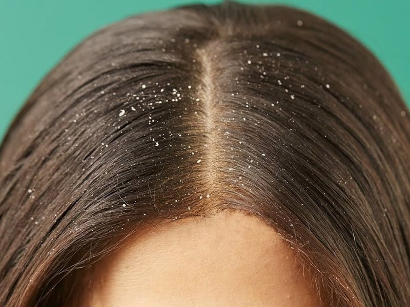 How To Stop Pimples On Scalp Causing Headache: The Causes and Treatments