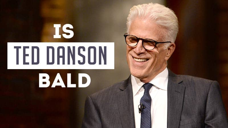 Is Ted Danson Bald? Untold Story About Ted Danson Hair
