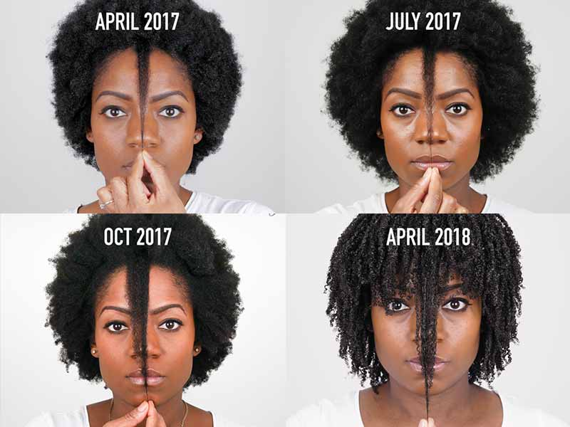 Does Hair Growth Serum Really Work? You Must Read This!