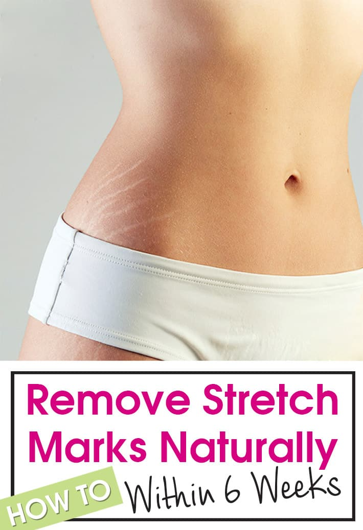 Remove Stretch Marks Naturally Within 6 Weeks