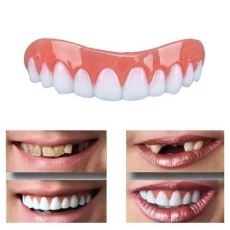 Treatment Veneer- Global Estetik Dental Care