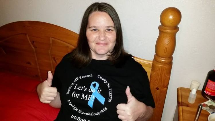 Rachel Monkman pictured before her 2015 Head Shave for Invest in ME