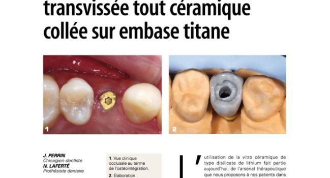 Prothèse-implantaire-transvissée-tout-céramique-collée-sur-embase-titane-2