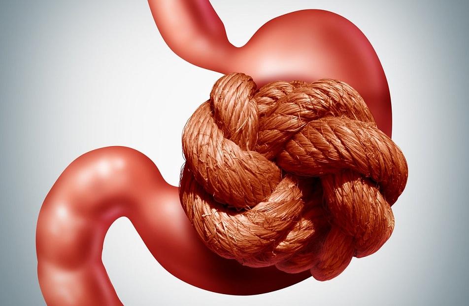 Que faire contre la constipation : remède immédiat