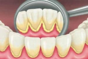 Meilleur détartreur dentaire contre la gingivite et la parondontite