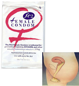 female-condoms