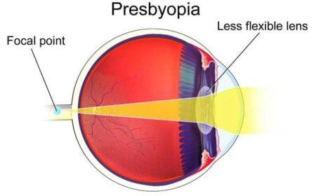 Presbyopia- human eye