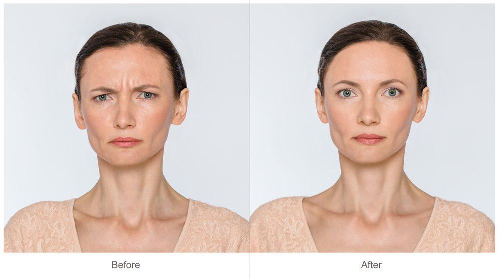 Botox Alternatives