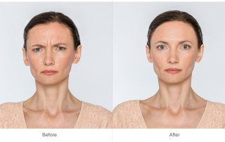Botox Alternatives