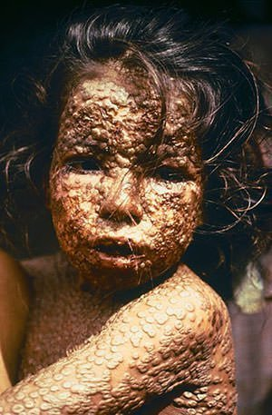 A child with smallpox