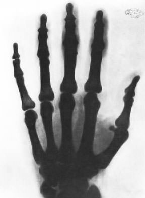 Nikola Tesla X-ray