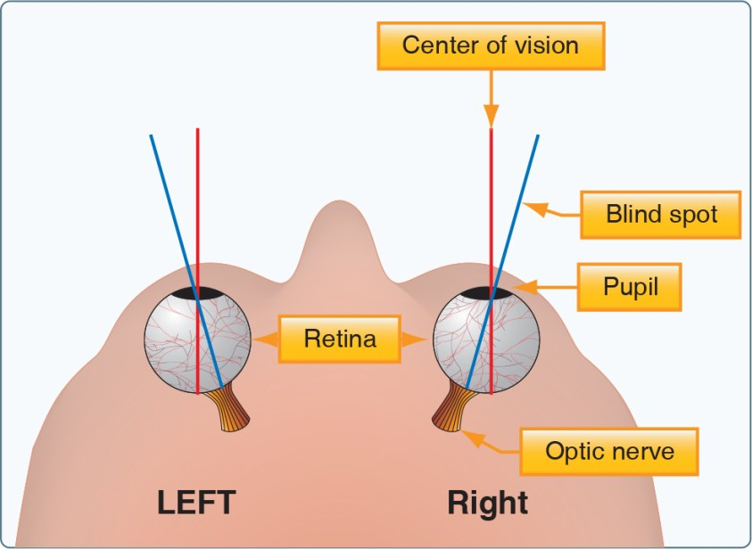 Human Factors: The Blind Spot - Learn to Fly Blog - ASA ...