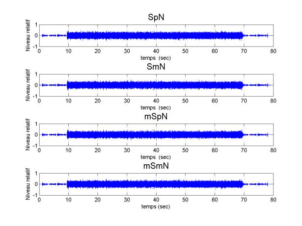 5_DPA_ref_JUNA9_env_beyer_SNRm10_Aligned_Signals