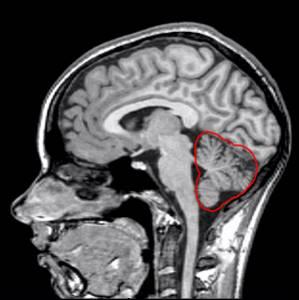 Που βγαίνει με κάποιον με τραυματική εγκεφαλική βλάβη