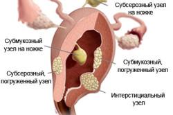 Миома матки с субсерозным узлом: миоматозный узел тела матки по передней стенке – оперировать или нет. Лечение субсерозной миомы в Москве