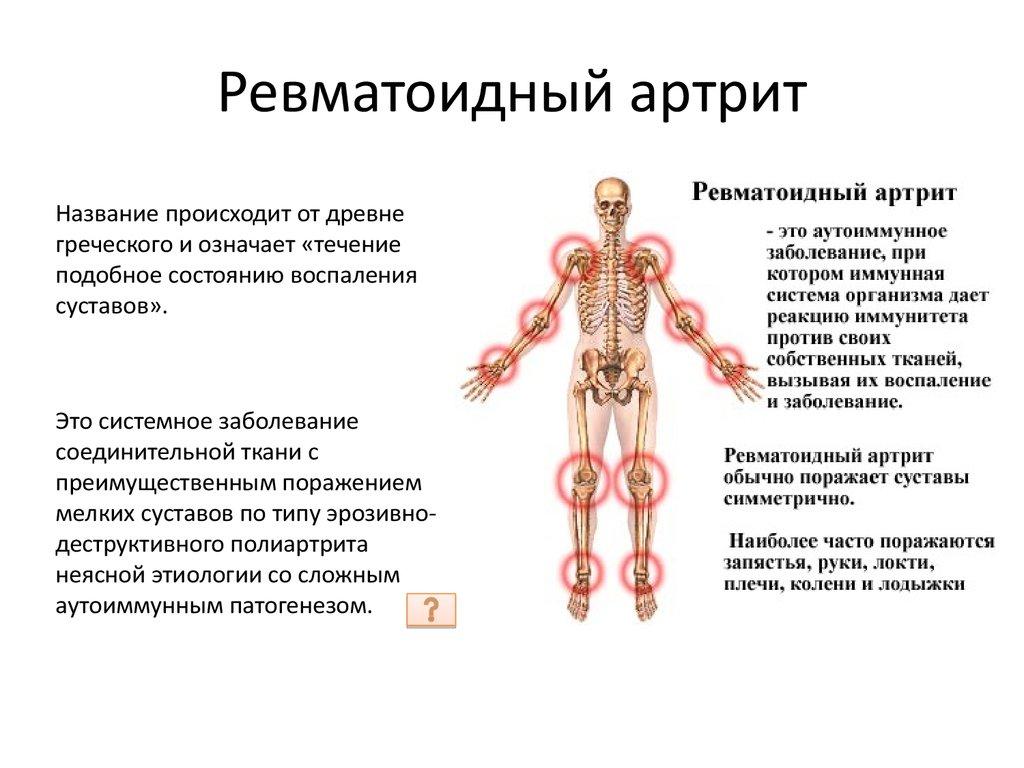 Как правильно сдавать кровь на ревматоидный фактор и о чем может рассказать анализ