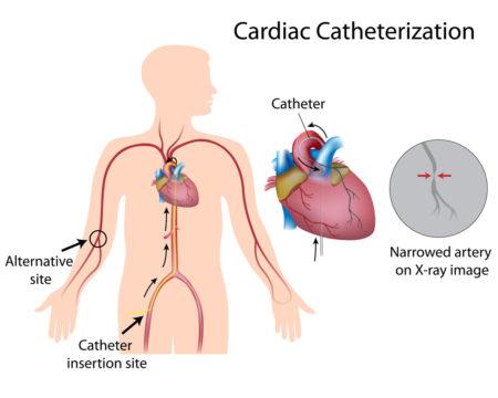 treniruoklis ir hipertenzija